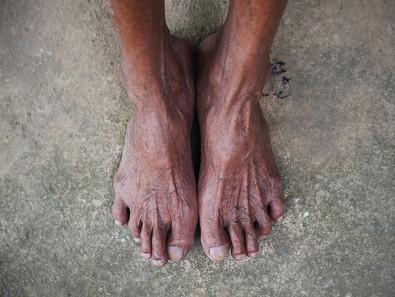 Lifesaving Routine Diabetic Foot Care