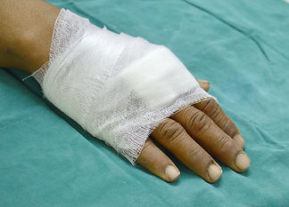 hand covered with a simple gauze dressin