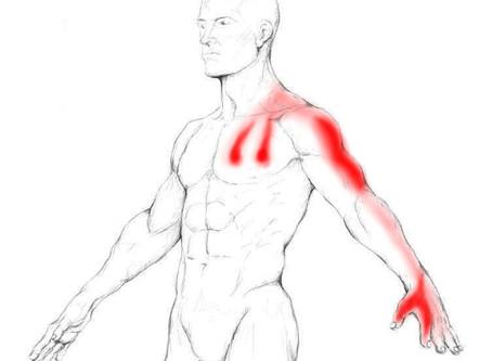Étirement pour les douleurs au bras
