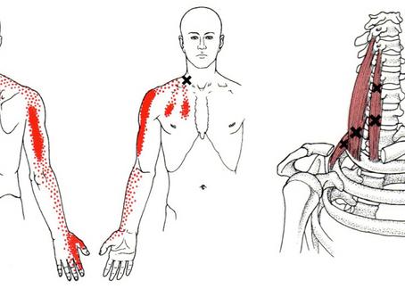 Les douleurs aux bras