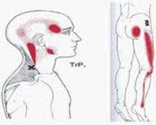 Dr. Janet Travell's Trigger Point Therapy