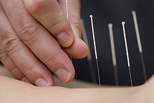 Chiopractic and Acupuncture Services