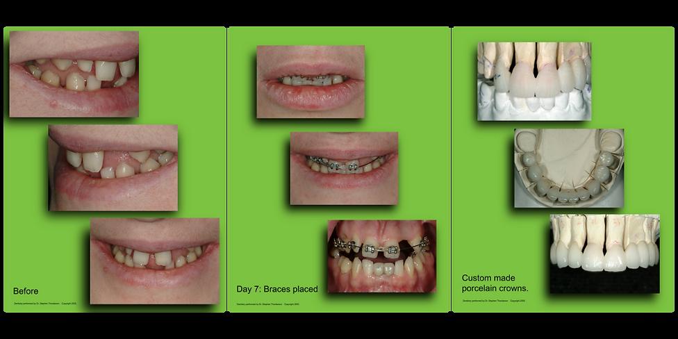 Crowns & Bridges Neo Dental
