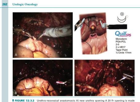 Nuovo capitolo di libro su libro New Technologies and Techniques in Minimally invasive Urologic Surg