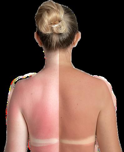 sunburn_lady_edited.png