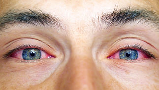red eye .jpg