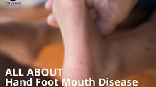 All About Hand Foot Mouth Disease