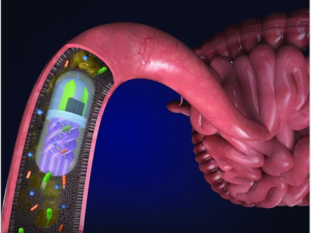 Would you swallow a pill to look at your gut bugs?
