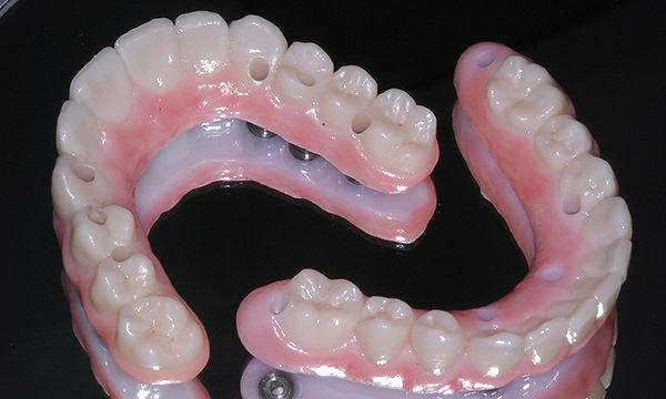 dentadura-fixa-sobre-implante-dentário-z