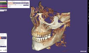 exocad-DentalCAD-Page-26-DICOM-Screen.png
