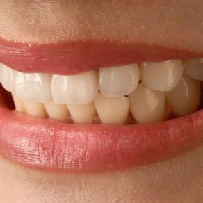 חריקת שיניים ו/או הידוק לסתות (Bruxism) - האם באמת מדובר בתופעה של לחץ וחרדה?