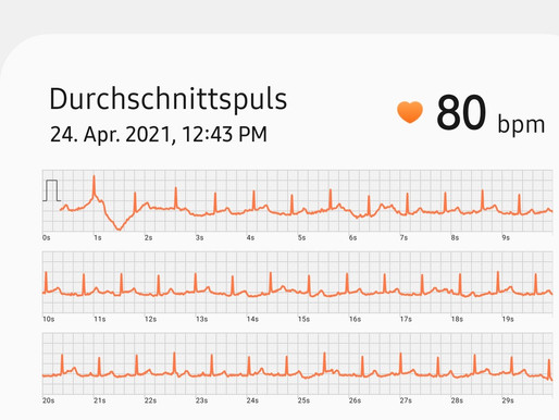 EKG mit der Smartwatch geschrieben – Gesundheits-App enthält Protokoll