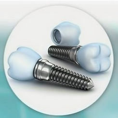 Dental-Implants-1024x288_edited.jpg