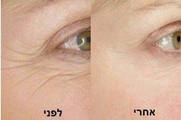 מתיחה ומיצוק הפנים
