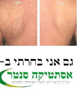 הסרת שיער בלייזר לגבר