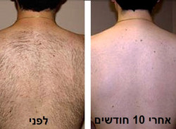 laser-hair-removal-before-after-back NEW