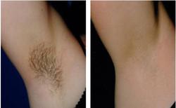 Armpit Laser Hair Removal BA