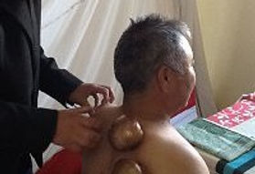 Traditional Tibetan Medicine - Cupping with Copper Bowls