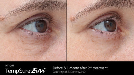 anti-aging, wrinkle-reducing, skin-tightening, botox, skincare, radiofrequency, TempSure Envi, reduce fine lines and wrinkles, facelift, cosmetic, medspa