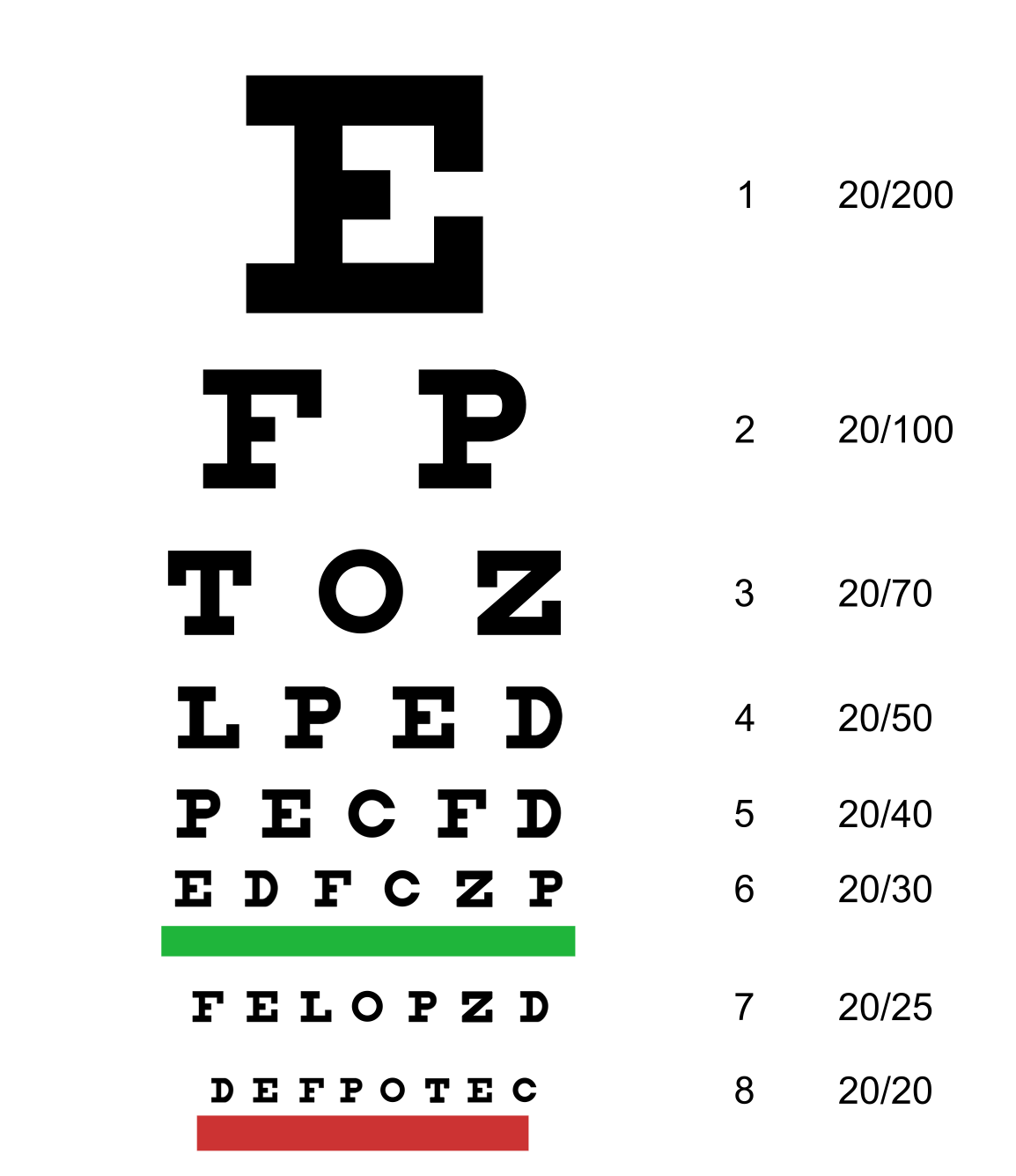 Consulta Optometrica
