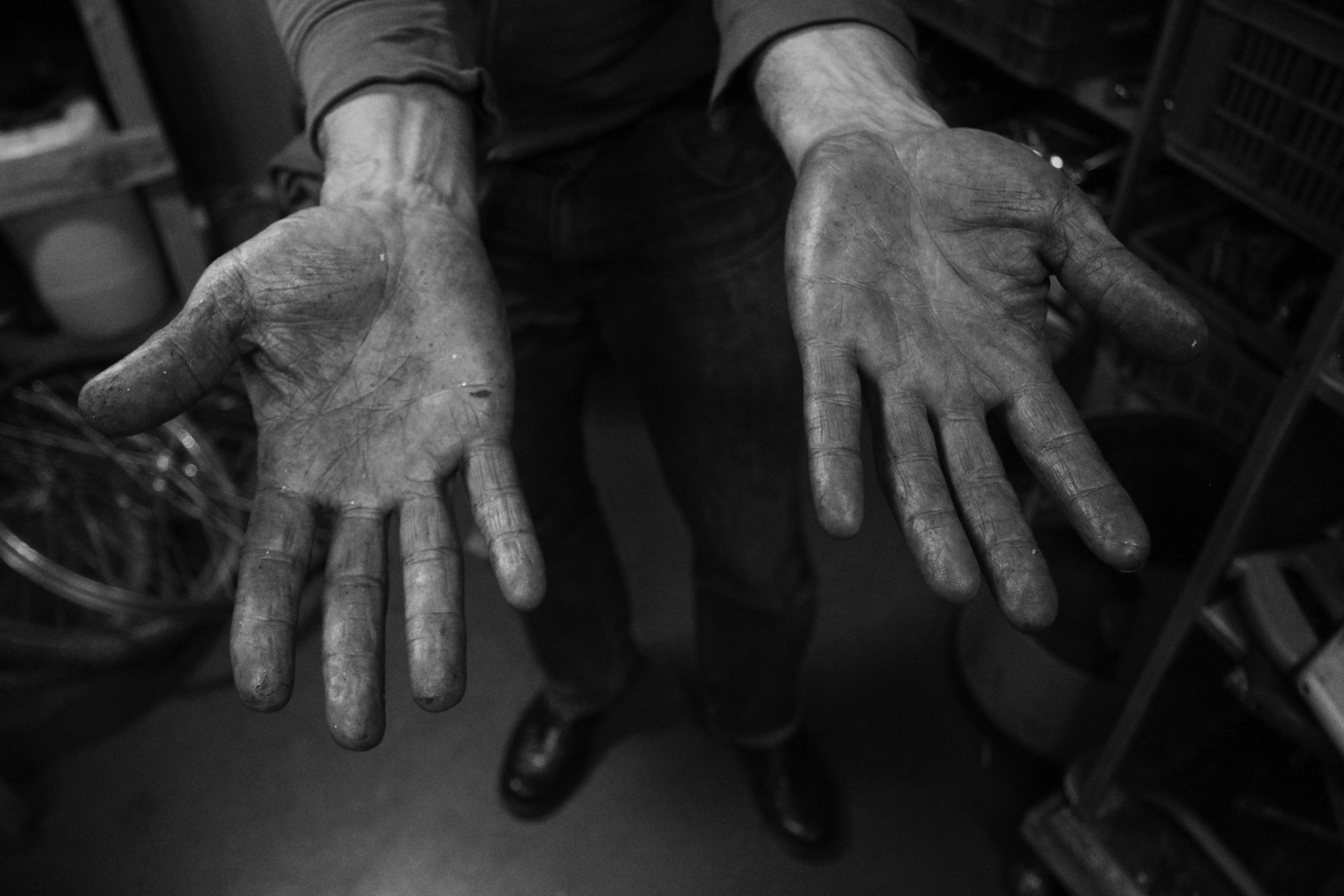 Inigo hands