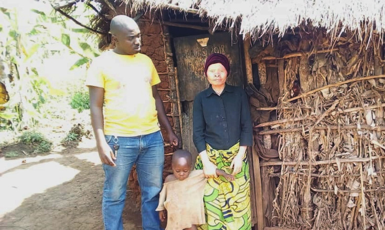 The challenges associated with albinism