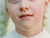 Couches-toi moins con #2 : un albinos, c'est quoi ?