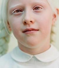 Tu te coucheras moins con :  C'est quoi un albinos ?