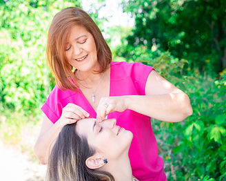 Cosmetic acupuncture near me   acupuncture Toronto   cosmetic acupuncture   facial acupuncture benefits \ University of Tor onto