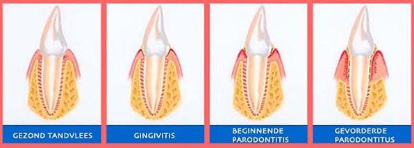 Wat-is-Parodontitis-uitleg-door-tandarts