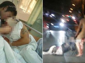 Suami Selingkuh, Sang Istri Potong Kemaluan Suaminya Dua Kali