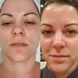Skin Treatments @ eNVy