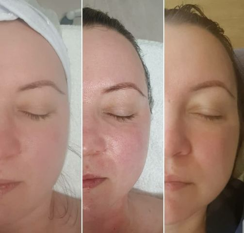 Skin Treatments @ eNVy