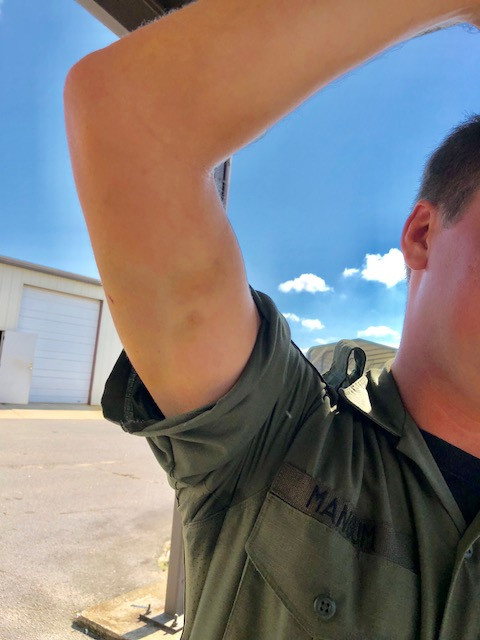 Pictured:  Deputy Patrick Mangum's right upper arm after a training exercise where he impersonated a criminal.  The deputy was wearing a bite suit and still sustained bruising and small puncture wounds.
