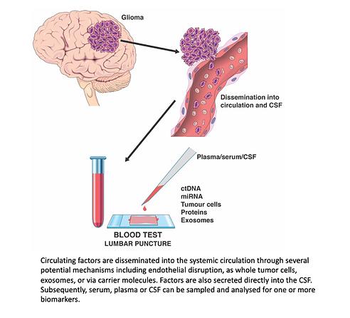 Liquid biopsy figure - Brain Tumour Grou