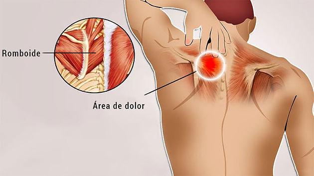 dolor muscular en pectoral izquierdo