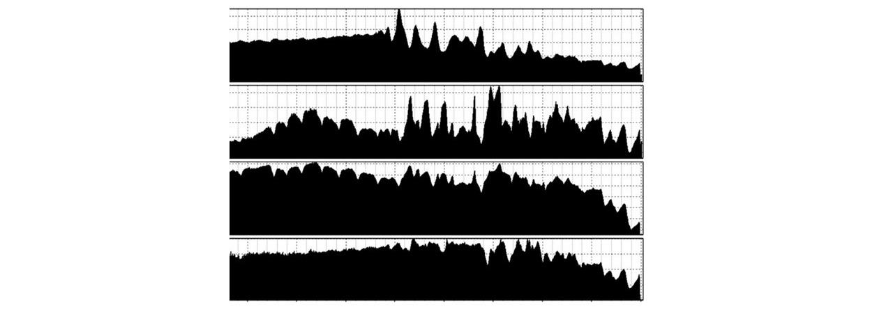 Brain waveforms