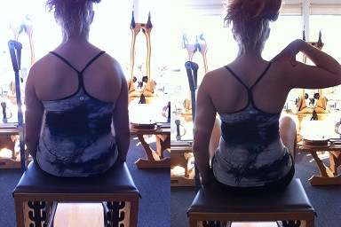 Before and after- seated scoliosis correction