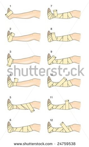 stock-vector-putter-bandage-technique-24759538