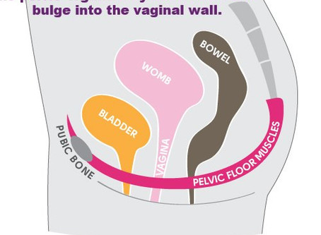Are your pelvic floor problems actually a prolapse?