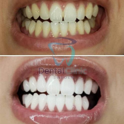 Presentkort - Klinik Tandblekning