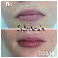 увеличение губ оренбург