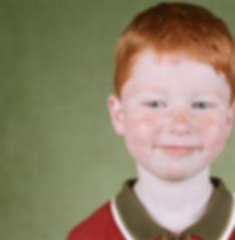 Freckled Kid