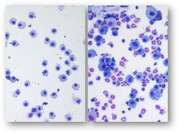 Lung cells for Mikro website.jpg