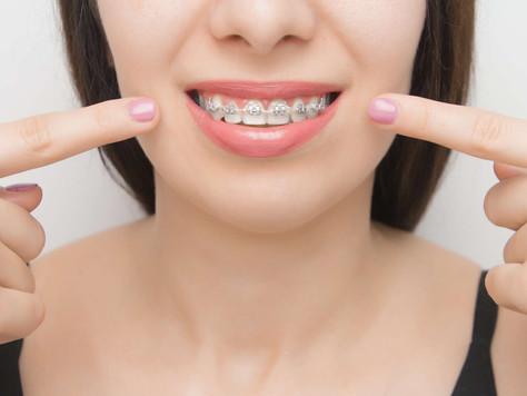 Czy aparat ortodontyczny przeszkadza w leczeniu zębów?