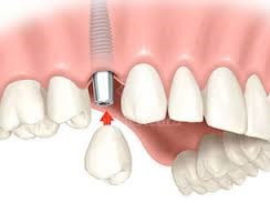 Perdi um dente! Qual a solução?