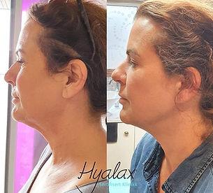 BodySlim Hyalax ansikt Klinikk Estetikk.jpg