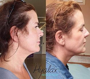 Hyalax BodySlim ansikt Klinikk Estetikk.jpg