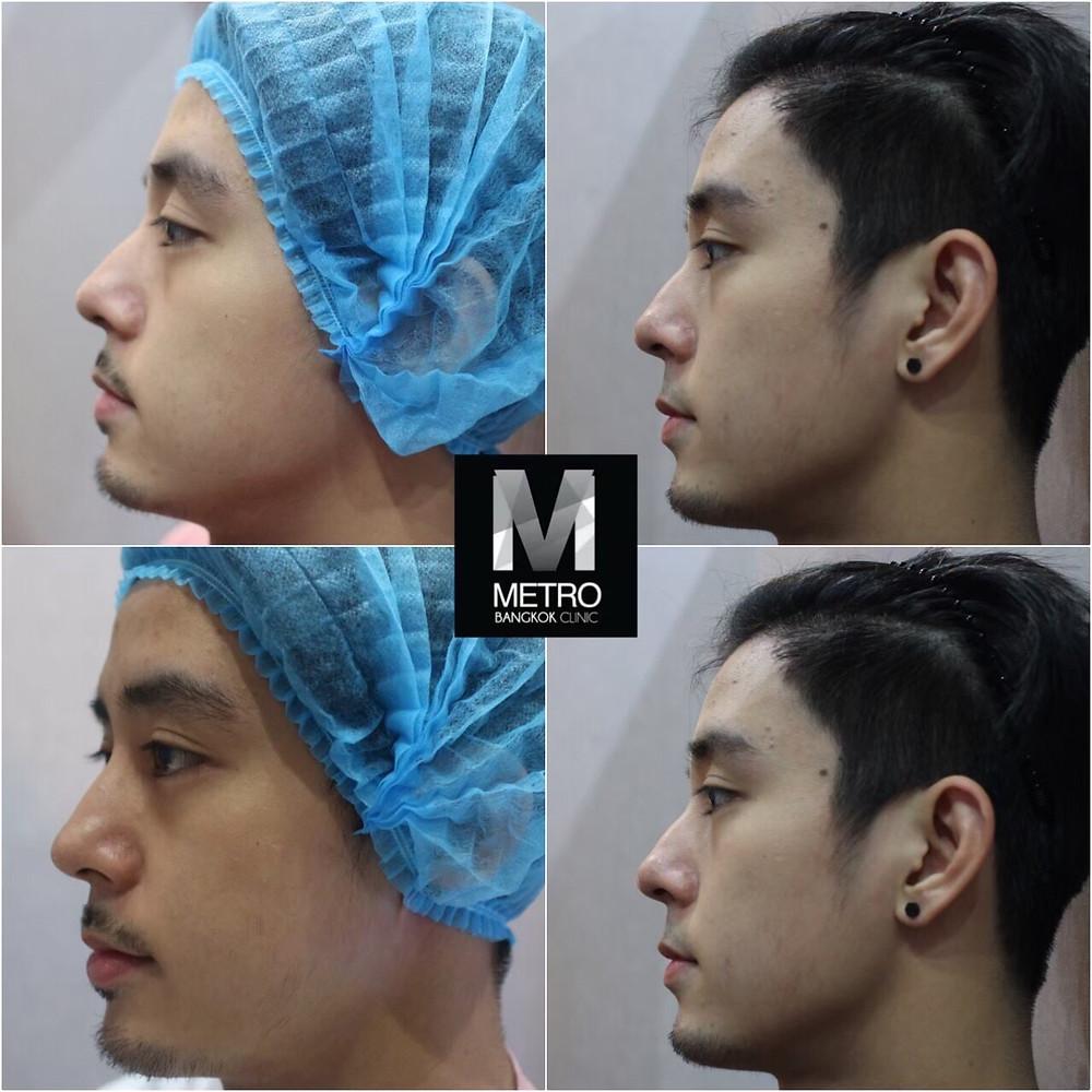 Metro-Bangkok-Clinic-HIFU-4DUltraLift-Before-After