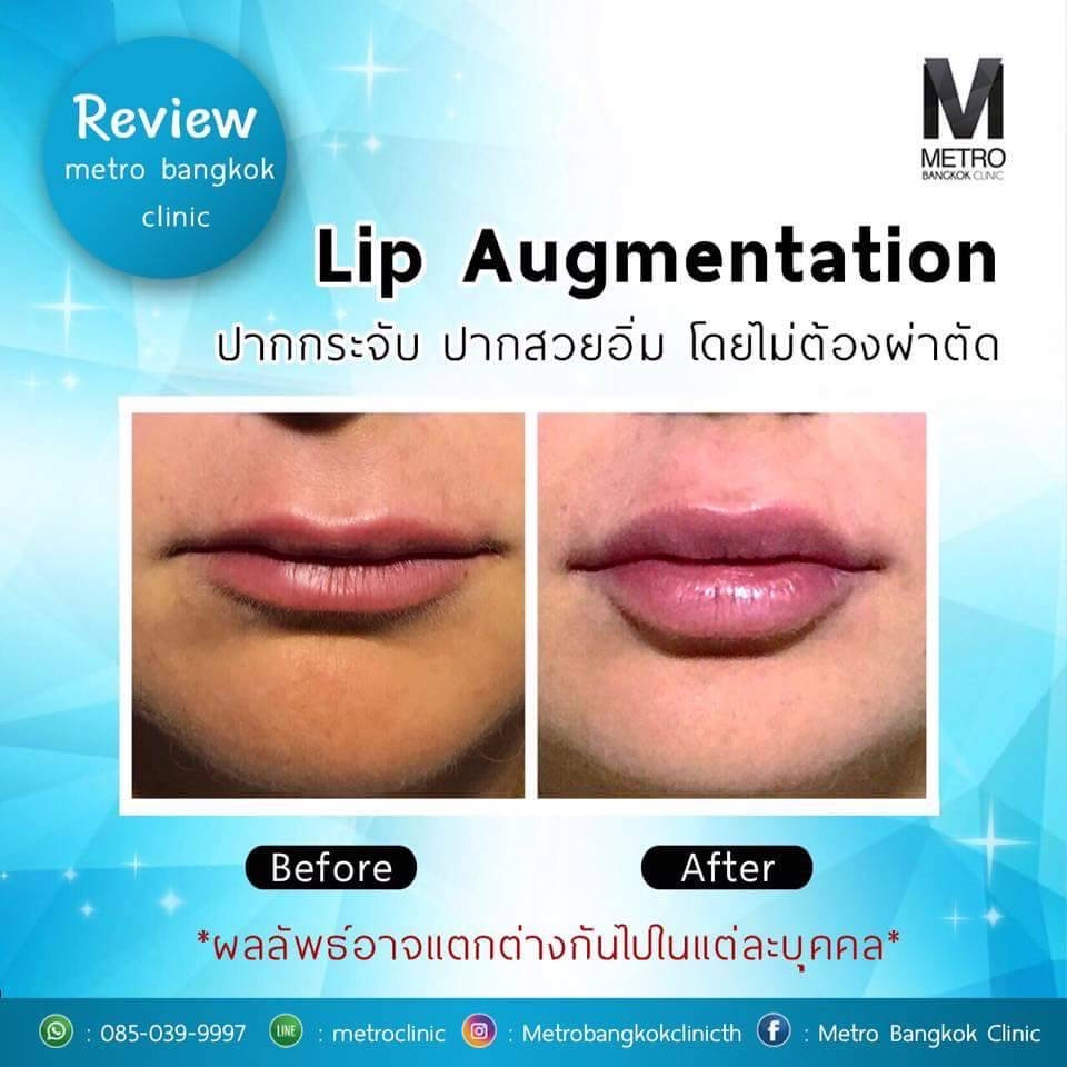 Metro-Bangkok-Clinic-lips-Augmentation-Juvederm-Allergan-Before-After